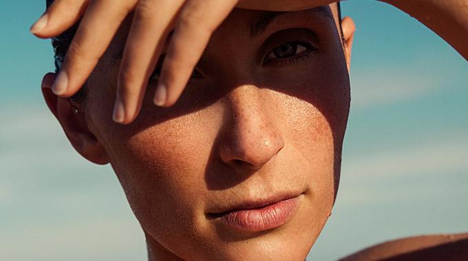 facial seborrheic dermatitis treatment