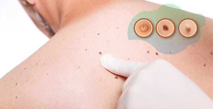 Warts Vs Skin Tags